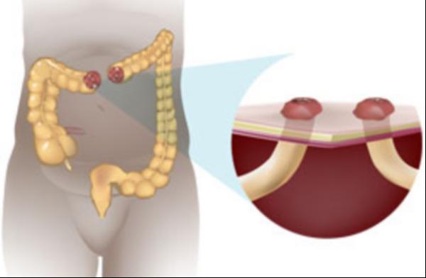 Закрытие двуствольной колостомы послеоперационный период диета