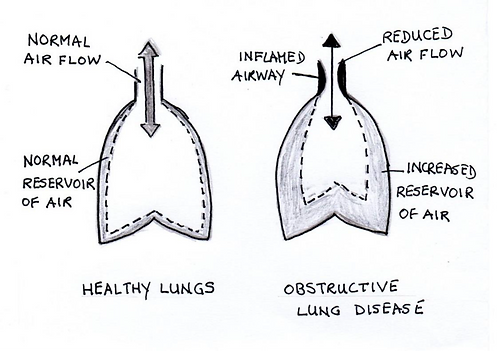 Obstructive Lung Disease.png