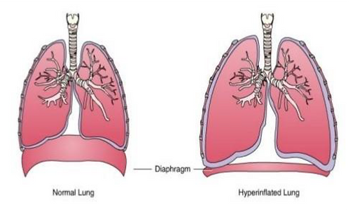 Hyperinflated Lung .png