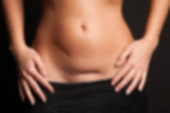 Female Scars.jpg