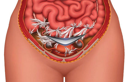 c-section-adhesions-1024x662.jpg