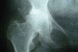 Dr_kouris_hip_x-ray_1.jpg