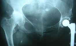 Dr_kouris_hip_x-ray_2.jpg