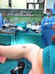 Dr_kouris_hip_operation_amis_2.jpg