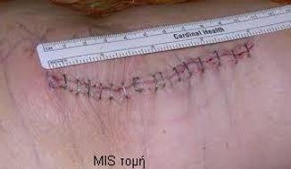 Dr_kouris_total_knee_replacement_mis_inc