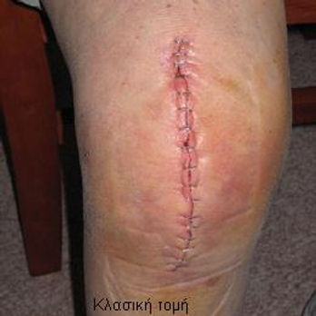 Dr_kouris_total_knee_replacement_old-inc