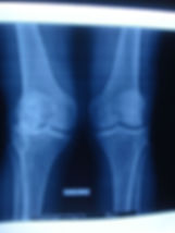Dr_kouris_knee_x-ray.jpg