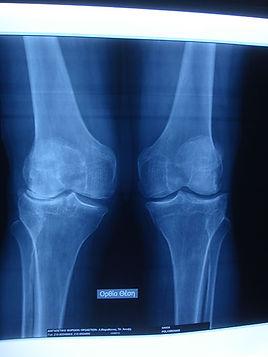 Dr_kouris_knee_x-ray.jpg