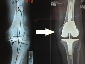 Dr_kouris_knee_replacement_mis_x-ray.jpg
