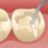 広島県安芸高田市の歯医者、上野歯科医院の低侵襲な虫歯治療