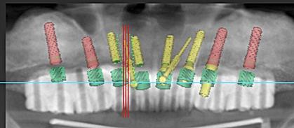 術前のシミュレーションを行った後に、ガイデッドインプラントサージェリーを行うことも可能です。