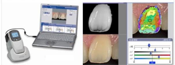 広島県安芸高田市の歯医者上野歯科医院ではデジタルシェードキングを用いた審美歯科治療を行っています。