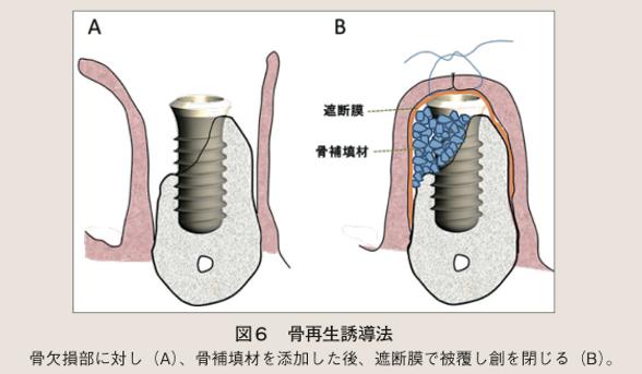 広島県安芸高田市の歯医者、上野歯科医院の骨再生誘導法(GBR)