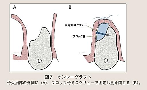 広島県安芸高田市の歯医者、上野歯科医院のブロック骨移植