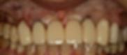 ジルコニアオールセラミックスクラウンの前処置として仮歯を作成しました。