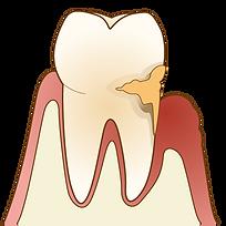 歯石の沈着