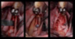 広島県安芸高田市の歯医者、上野歯科医院のリッジエキスパンジョンの手順です。