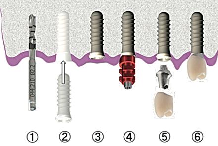 広島安芸高田県市の歯医者、上野歯科医院のインプラント埋入手術の順序です。
