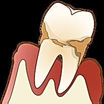 重度の歯周病