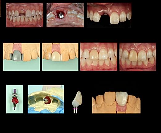 抜歯即時埋入 フラップレス手術