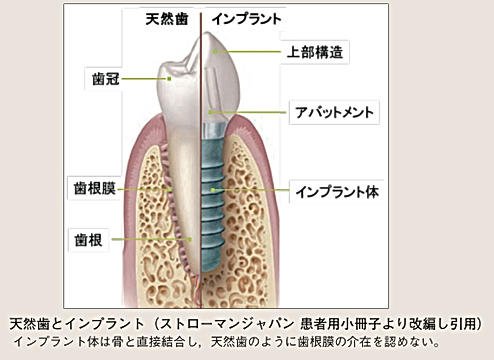 インプラントの基本構造