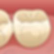 低侵襲な虫歯治療