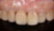 セラミックス 歯冠修復