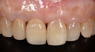 セラミック 歯冠修復