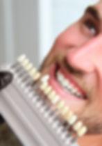 Facette-dentaire.jpg