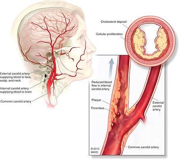 Αγγειακό Εγκεφαλικό Επεισόδιο και Καρωτιδική Νόσος