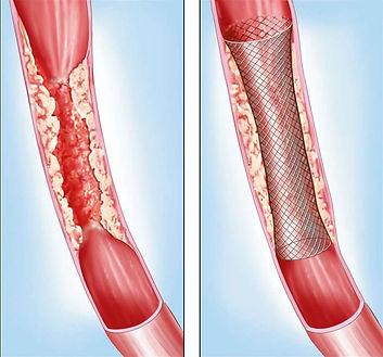 Αγγειοπλαστική με ή χωρίς τοποθέτηση ενδονάρθηκα (stent)