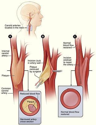 Ενδαρτηρεκτομή Καρωτίδας