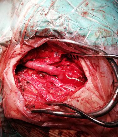 Ανοιχτή χειρουργική αποκατάσταση