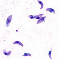 Toxoplasmosi ricerca antigeni