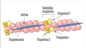 Troponina I Cardiaca (cTnI)