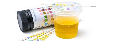 Urine13 parametri