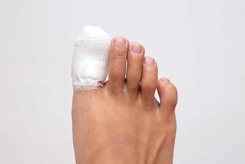 ingrown toenail healing by removed some