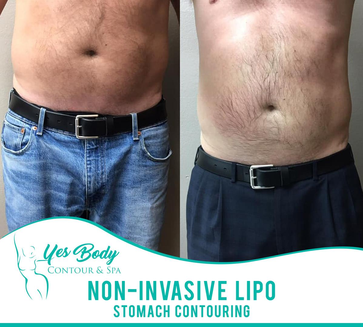Non-Invasive Lipo | Pensacola | Yes Body