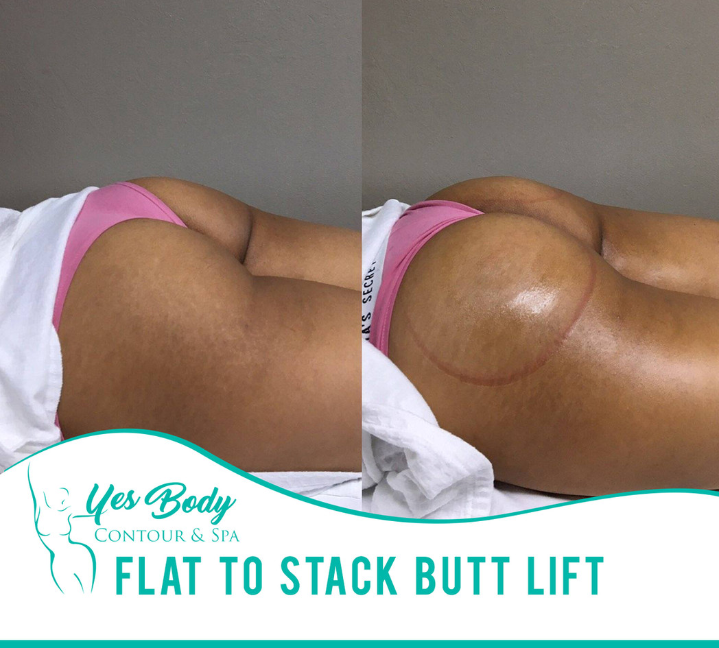 Flat To Stack Butt Lift | Yes Body