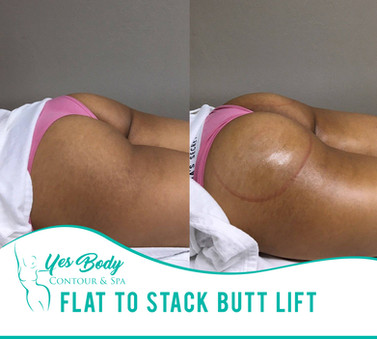Flat To Stack Butt Lift   Yes Body