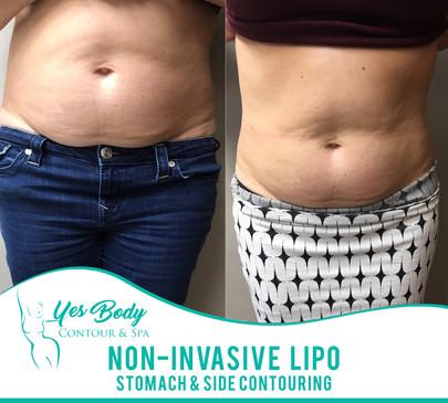Non-Invasive Lipo   Pensacola   Yes Body