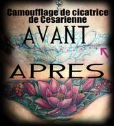 Modèle tatouage lotus couleur bas du ventre cover up cicatrice camouflage.