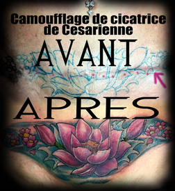 Hide cesarean scar lotus neotrad lower belly