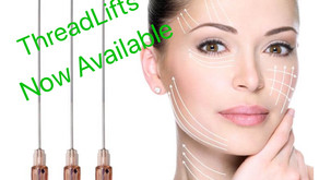 ThreadLifts Have Arrived
