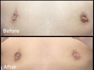 修正胸オペ・オペ後約3ヶ月