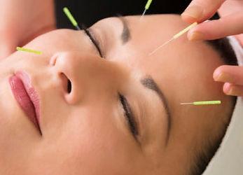 acupunture-iStock_000046959242_Large-350