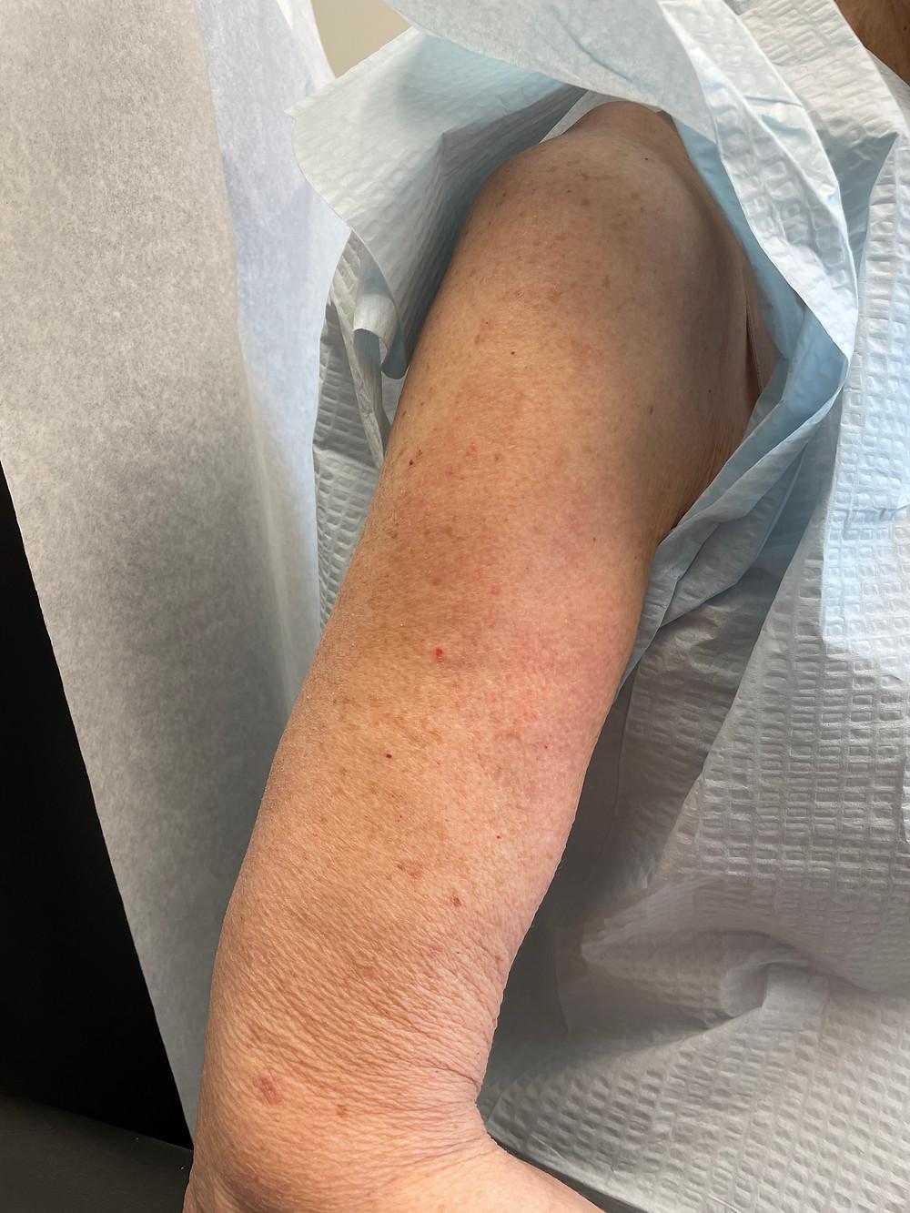 COVID arm rash