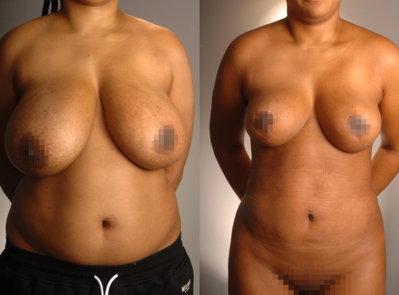 Breast Reduction 9.png