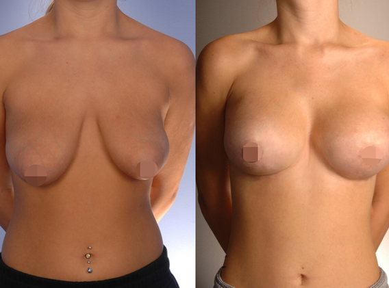 Breast Reduction.png