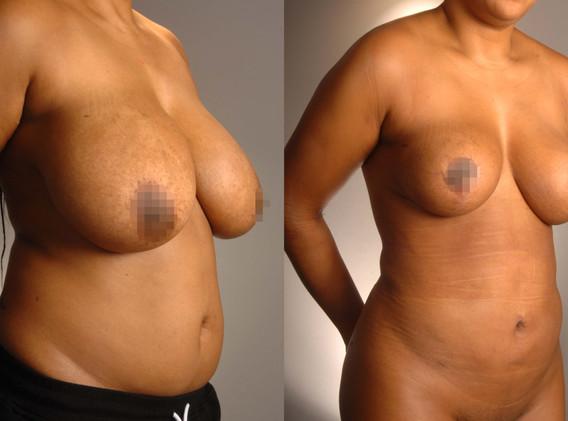 Breast Reduction 8.jpg